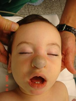 Example of nasal hemangioma