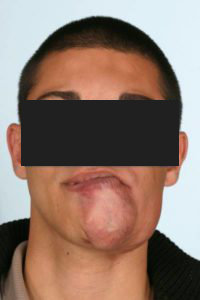 Before - A patient with an AVM of his lower lip and chin.