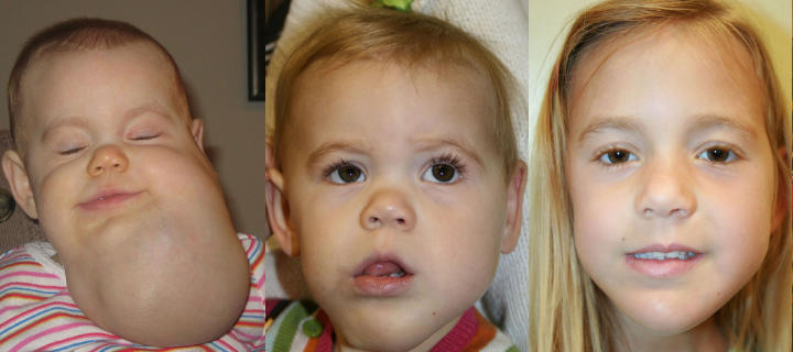 three photos of girl: before, shortly after and some time after cheek lymphatic malformation excision