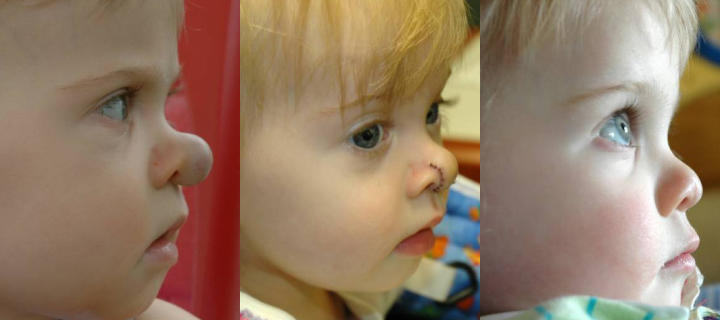 three photos of a baby: before, shortly after and some time after nasal hemangiomas surgical treatment