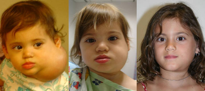 three photos of a girl: before, shortly after and some time after neck lymphatic malformation excision