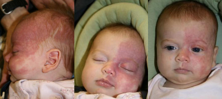three photos of a baby: before, shortly after and some time after facial port wine stains laser treatment