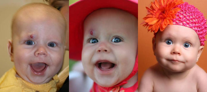 three photos of a baby: before, shortly after and some time after eyelid hemangiomas treatment