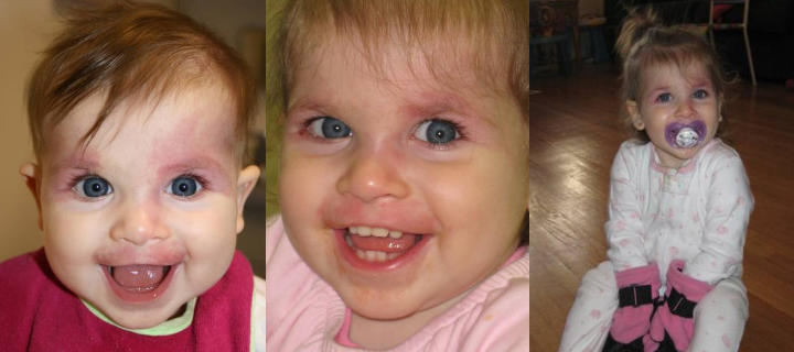three photos of a baby girl: before, shortly after and some time after facial port wine stains laser treatment