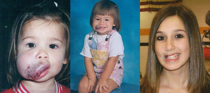 three photos of a girl: before, shortly after and some years after lip venous malformation excision
