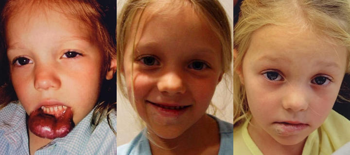 three photos of a girl: before, shortly after and some time after lip hemangiomas surgical treatment