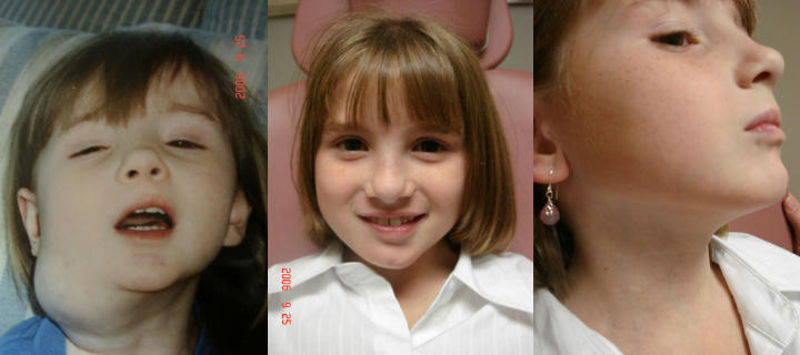 three photos of a girl: before, shortly after and some time after cheek lymphatic malformation excision
